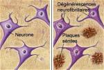 neurone-large